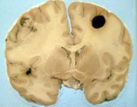 Як розпізнати і вилікувати меланому головного мозку фото