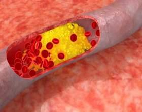 Як знизити холестерин в крові (норма холестерину для жінок і чоловіків) фото