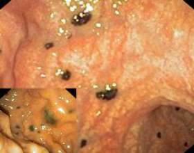 Які ознаки характерні для меланоми прямої кишки і чим небезпечне захворювання фото