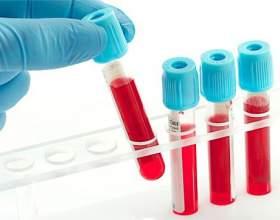 Яка норма гемоглобіну в крові у жінок? фото