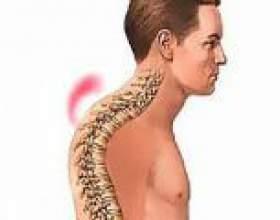 Кіфоз грудного відділу хребта (грудний кіфоз) фото