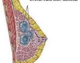 Кіста молочної залози фото