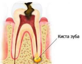 Кіста на корені зуба фото