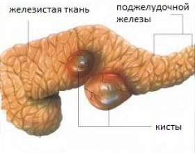 Кіста підшлункової залози фото