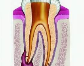 Кіста зуба фото