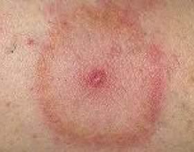 Кліщовий бореліоз (лайма): причини, симптоми, лікування фото