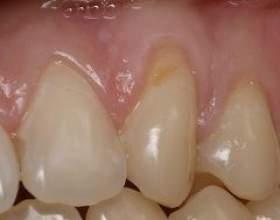 Клиновидний дефект зубів фото