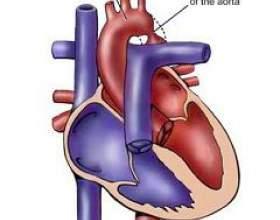 Коарктация аорти фото