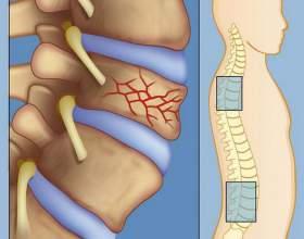 Компресійний перелом хребта поперекового відділу: різновиди та лікування фото