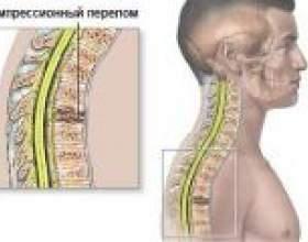 Компресійний перелом хребта, симптоми, лікування фото