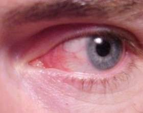 Кон`юнктивіт або червоне око: симптоми, лікування фото