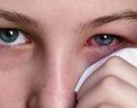 Коньюктивіт - причини, симптоми і лікування фото