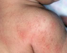 Шкірна алергія: причини, симптоми, лікування фото