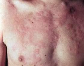 Кропив`янка: симптоми, лікування, причини появи фото