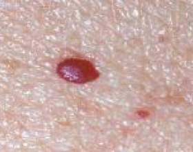 Червоні точки на тілі як родимки - що це? фото