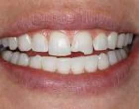 Кришаться зуби - що робити? фото