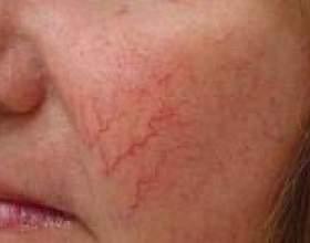 Купероз на обличчі: причини і лікування фото