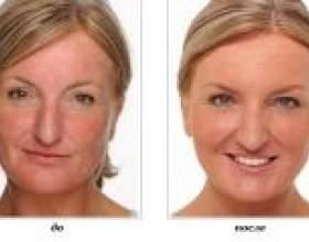 Лазерне видалення купероза на обличчі фото