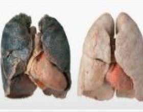Лікування бронхіту курця фото