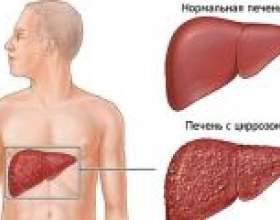 Лікування цирозу печінки фото