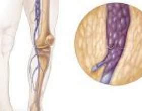 Лікування глибоких вен нижніх кінцівок фото