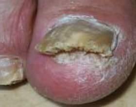 Лікування грибка народними засобами фото