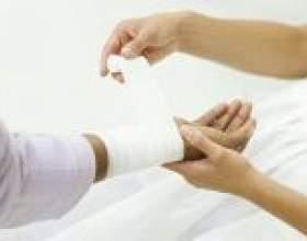 Лікування шкіри після опіків фото