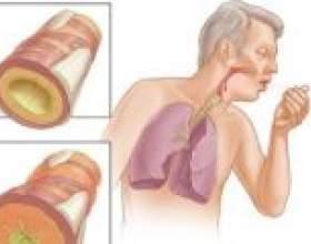 Лікування гострого трахеїту фото