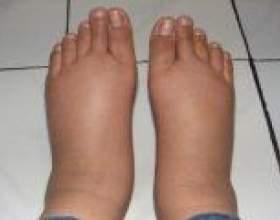 Лікування набряків ніг у літніх народними засобами фото