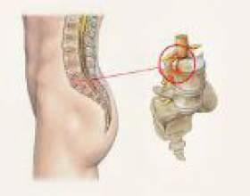 Лікування протрузії поперекового відділу хребта фото