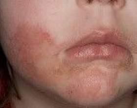 Лікування себорейного дерматиту на обличчі фото