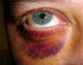 Лікування синців під очима фото
