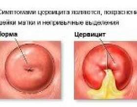Лікування запалення шийки матки фото