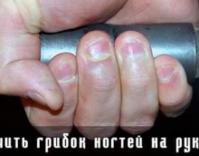 Лікувати грибок нігтів на руках фото