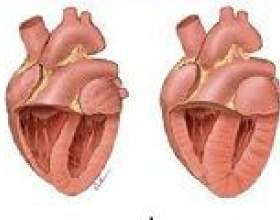Легеневе серце: причини, симптоми, лікування фото