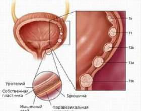 Лейкоплакія сечового міхура фото