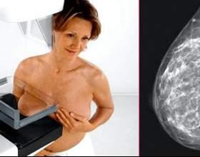 Мамографія молочної залози фото