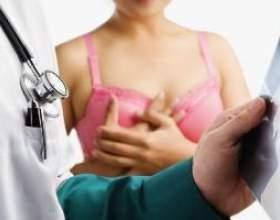 Мастектомія - операція з видалення молочної залози фото