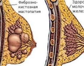 Мастопатія кістозна - причини, симптоми і лікування фото
