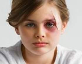 Мазь від синців і ударів. Чим лікувати синець? фото