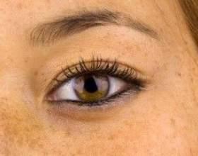 Мелазма - причини, симптоми і лікування фото