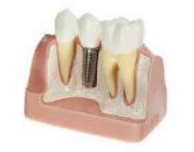 Методи імплантації зубів фото