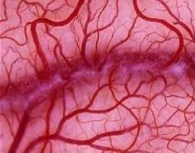 Мікроангіопатія фото
