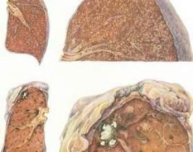 Міліарний туберкульоз фото