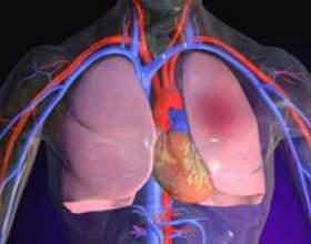 Міокардіодистрофія фото