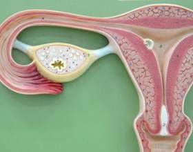 Міома матки розміри для операції фото