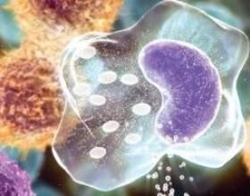 Множинна мієлома - причини, симптоми і лікування фото