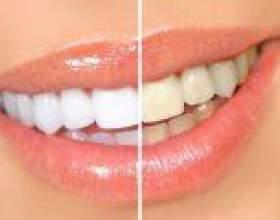 Чи можна відбілити зуби в домашніх умовах? Найбільш популярні методи фото