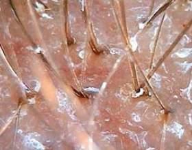 Найбільш дієві методи лікування себорейного дерматиту голови фото
