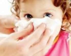 Нежить без температури у дитини ніж лікувати? фото